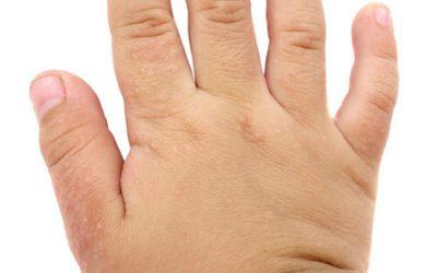 Revisión de la AAP sobre el manejo de la dermatitis atópica