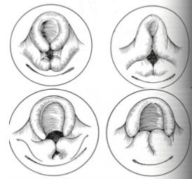 Estudio sobre laringomalacia en pediatría