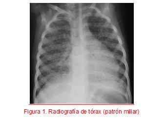 CASO CLÍNICO: Lactante de 1 mes con sibilancias y contacto tuberculoso
