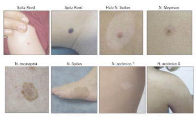 Casos clínicos en dermatología