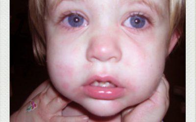 Anafilaxia: puntos claves del diagnostico y del tratamiento
