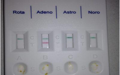 No todo es rotavirus: utilización de Test de diagnóstico rápido en el diagnóstico etiológico de otras gastroenteritis víricas