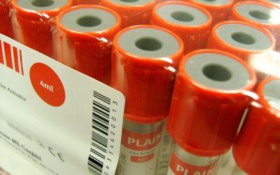Test de diagnóstico rápido para enterovirus en la consulta de Pediatría de Atención Primaria