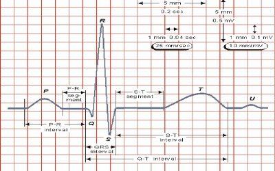 Taller: Lectura rápida del ECG en pediatría