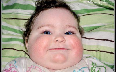 Mecanismos, fisiopatología y manejo de la obesidad