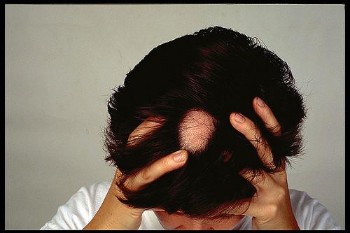 Terapia con metilprednisolona en pulsos en alopecia areata