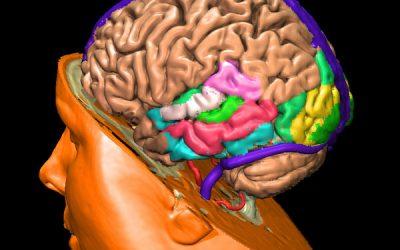 Epidemiología del pseudotumor cerebri