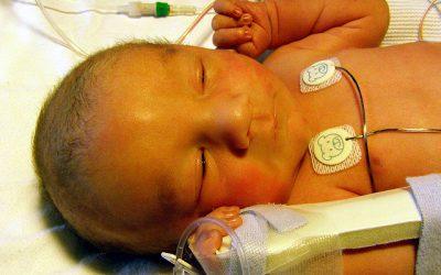 La dosis mínimamente efectiva de sacarosa para el alivio del dolor en recién nacidos
