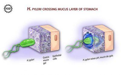 Helicobacter pylori: ¿tratar o no tratar?