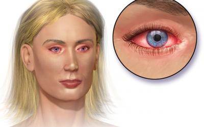 Diagnóstico y tratamiento de conjuntivitis alérgicas