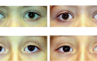 Taller de oftalmología básica en pediatría y atención primaria