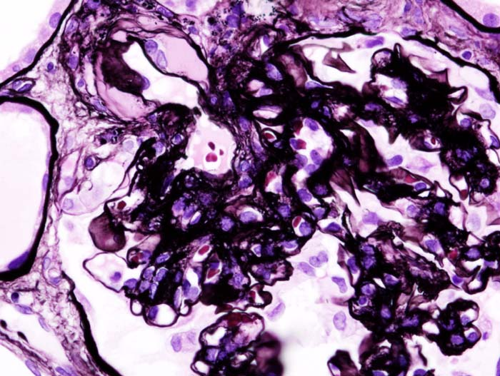 Diabetic glomerulonephritis in a person with nephrotic syndrome
