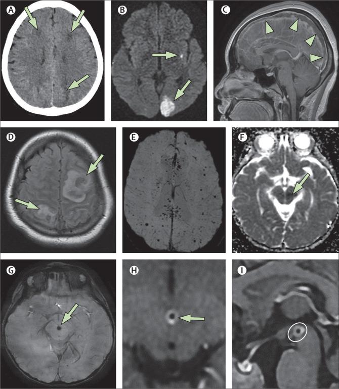 Afectación cerebral del COVID-19, ver para creer