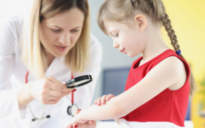 La dermatitis atópica en niños con Laboratorios Heel